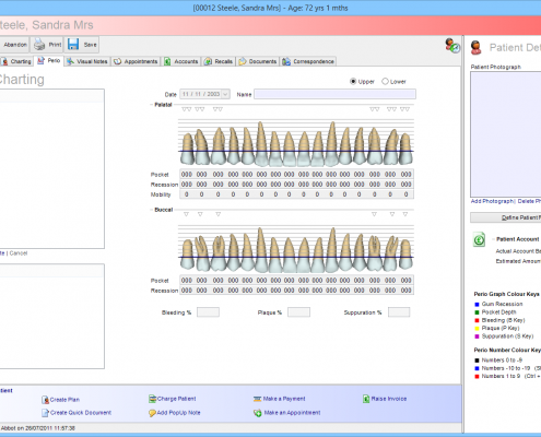 Software For Dentists - Perio Charting